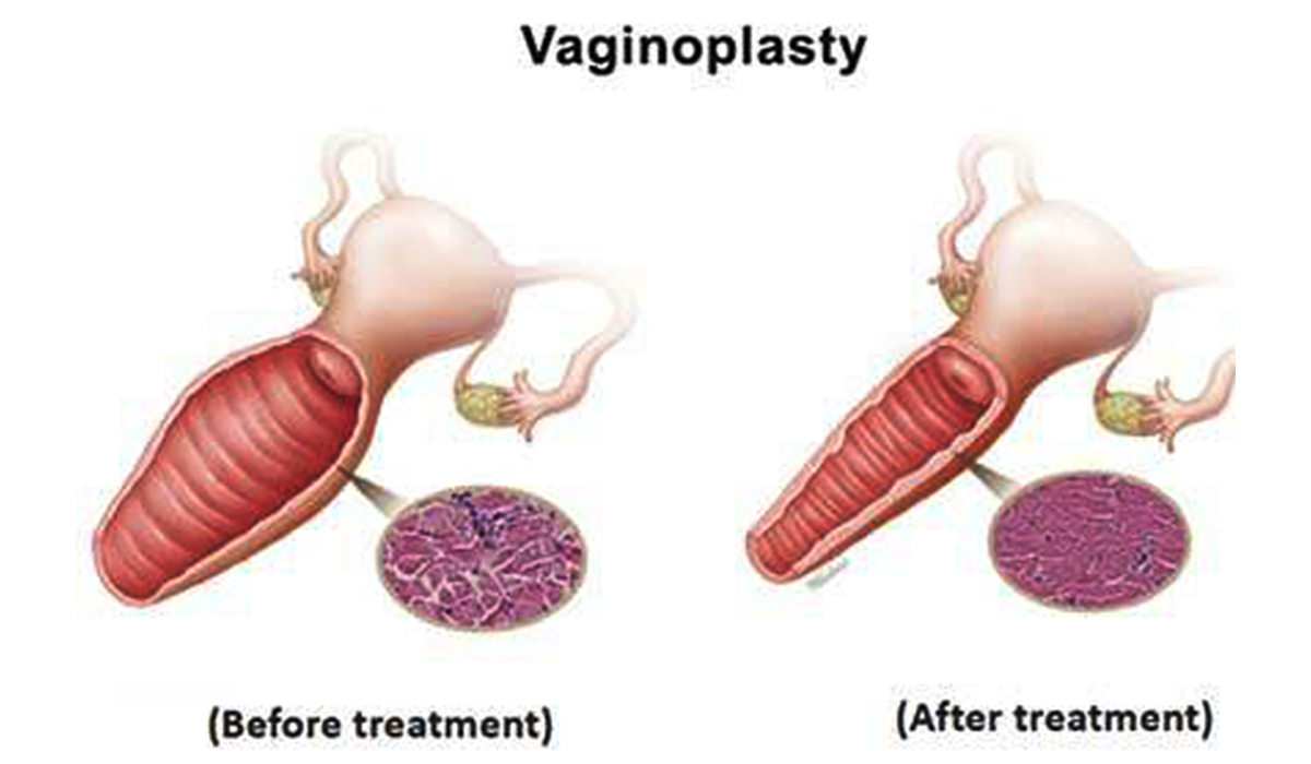 Vaginoplasty in Indore | Vaginal Rejuvenation Treatment ...